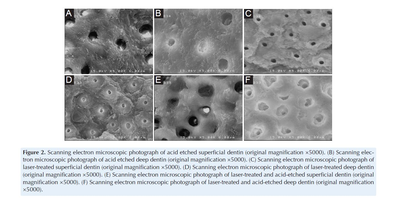 An In Vitro Comparison of the Bond Strength of Composite to Superficial and Deep Dentin, Treated With Er:YAG Laser Irradiation or Acid-Etching